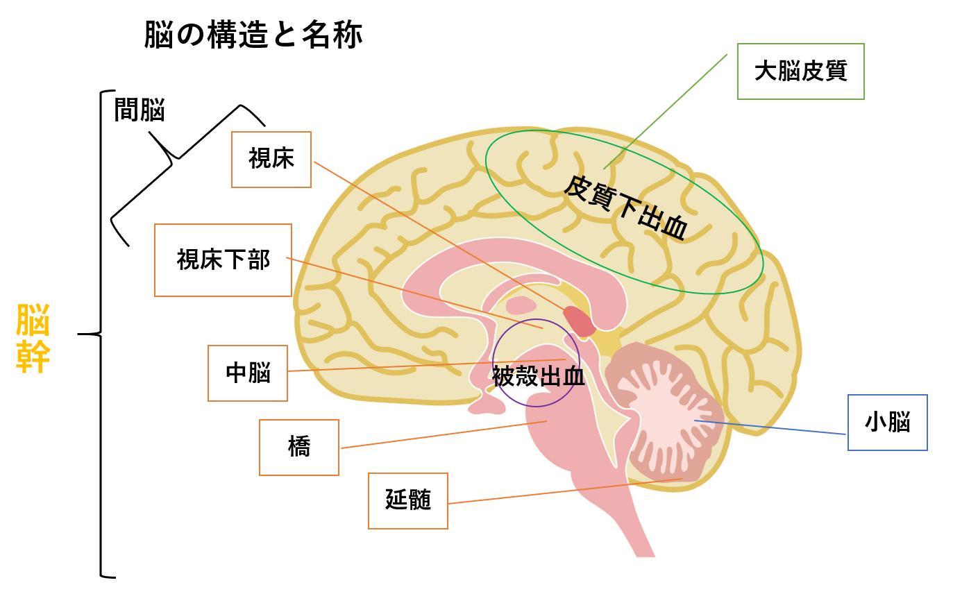 脳内出血の分類と症状 救急看護...
