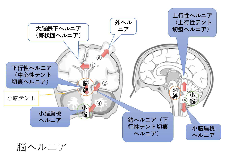 脳 ヘルニア 症状