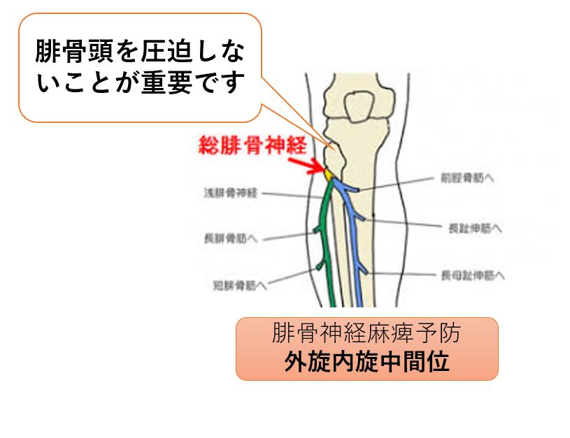 骨 骨折 大腿 頸 合併 症 部
